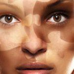 Vitiligo | causa e tratamentos