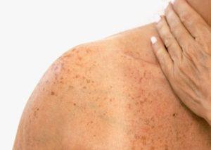 Mulher com câncer de pele