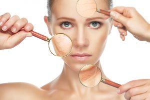 Mulher sofre com o envelhecimento precoce da pele