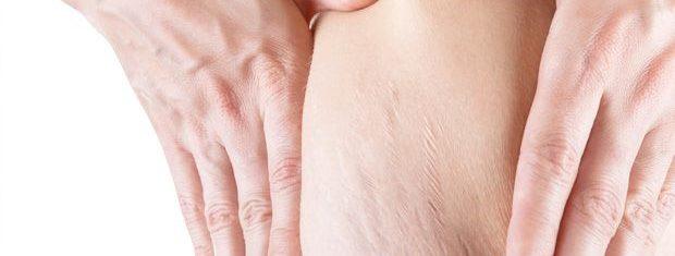 Muler com estrias no corpo | Microagulhamento para tratamento de estrias