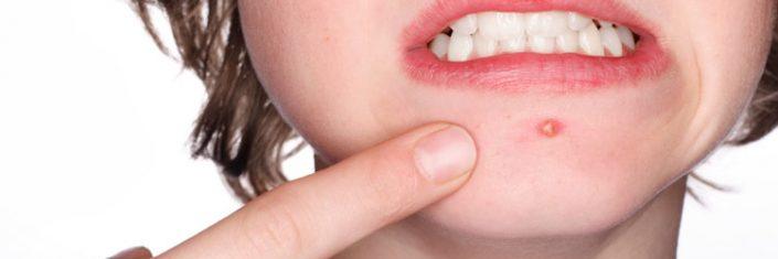 Mulher com acne