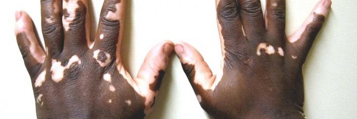 Mãos com vitiligo | Vitiligo tem cura?