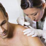 Tipos de câncer de pele