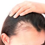O que é Alopecia Fibrosante Frontal